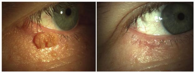 hogyan lehet eltávolítani a szemölcsöket a szemről