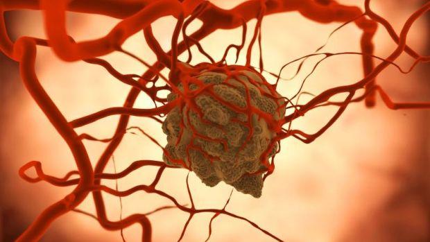 3. stádiumú nyaki rák enterobius vermicularis lijecenje