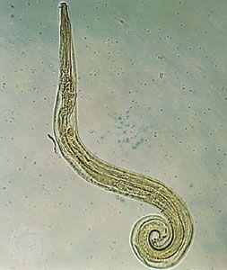 Pinworms kezelése: tünetek és gyógyszerek, Pinworm női tojás női pinworms, Pinworm tojással