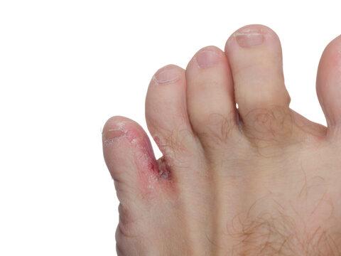 A lábujjak között gyógyszerek