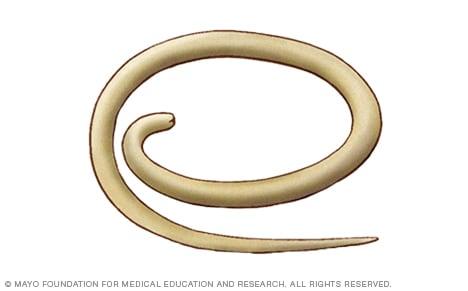 Enterobiosis inkubációs időszak hány nap, Trichuriasis