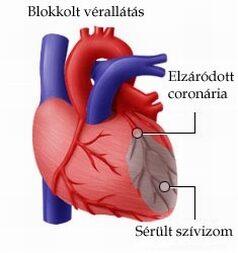a szívroham tünetei embereknél