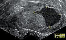 endometrium rák keto
