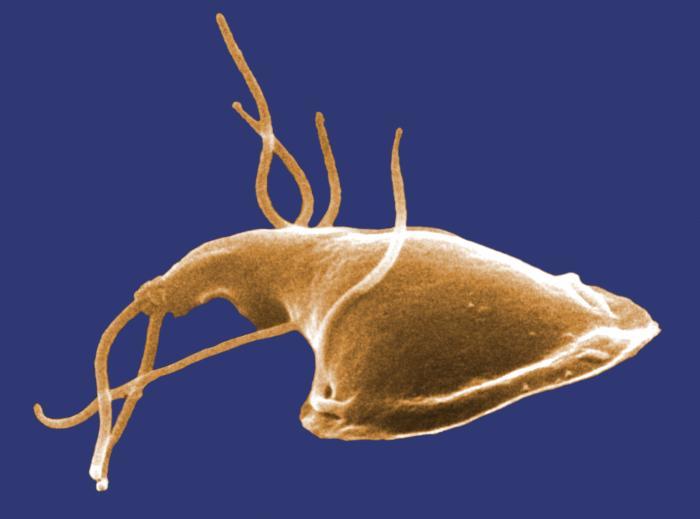 Giardiasis, mint felnőtteknél Giardia-fertőzés (giardiasis)
