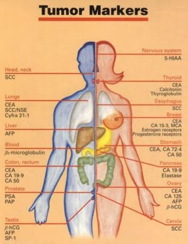 gyomorrák tumor markerek)
