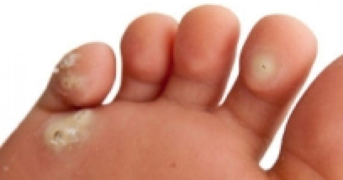 szemölcs lábpermet
