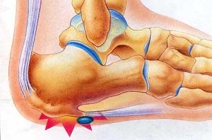 Sarkantyú tünetei és kezelése